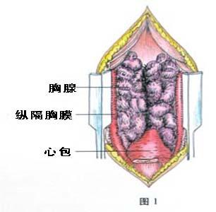 ,即可见位于前纵隔的胸腺组织 -胸腺瘤的治疗