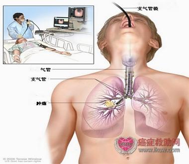 可通过纤维支气管镜对隆突,纵隔及肺门区淋巴结或肿物进行穿刺活检,有
