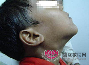 鼻咽癌有淋巴结肿大怎么办