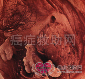 >腹膜间皮瘤