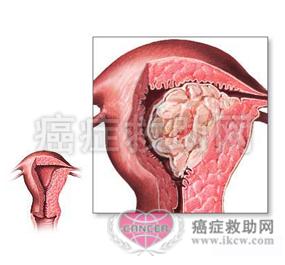 女人裸体阴蒂_女性生殖系统